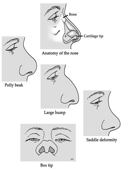 rhinoplasty Pollybeak Deformity